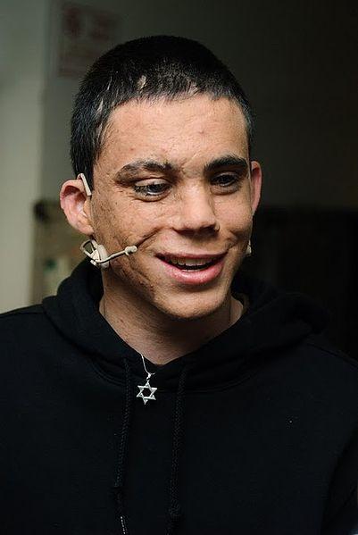 Oren Almog-Maxim-suicide bombing-2003