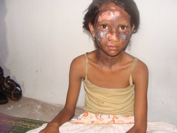 This Christian girl was bruised and burnt during anti-Christian violence by Hindu nationalists in 2008. She was injured when extremists threw a bomb into her house in Orissa, India.