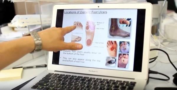 Diabetes, foot ulcers, Israel